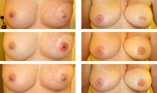 areoles-1