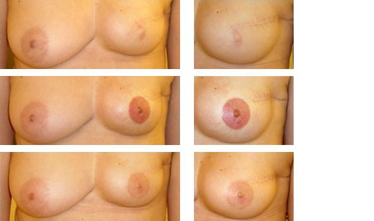 areoles-2